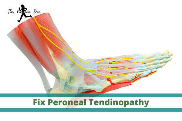 best exercises for peroneal tendinitis in runners, lateral ankle pain